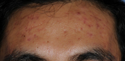 Acne Skin Care Before and After Pictures