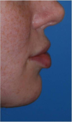 VY Advancement Lip Augmenation