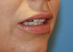 Perma Lip Augmentation Seattle Bellevue