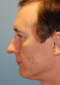 from Kade transsexual surgery rhinoplasty
