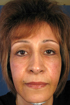 brow lift incision less face lift front after