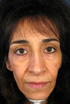 brow lift incision less face lift front before
