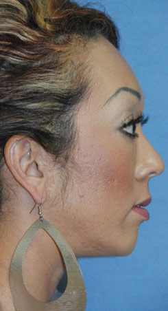 After Silicone Chin Implant Lateral View For Weak Retrusive Chin
