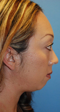 Before Silicone Chin Implant Lateral View For Weak Retrusive Chin