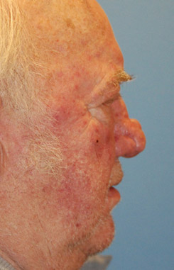 Facial Reconstruction for Rhinophyma Nasal Before