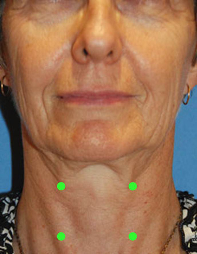 Fat Grafting Neck Contouring Injection Sites