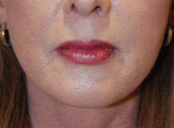 Fat Transfer Lip Augmentation After