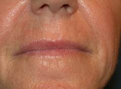 Laser resurfacing before
