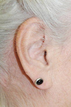 Earlobe Shaping For Droopy Large Earlobes