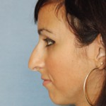 Nose Fillers | Non Surgical Rhinoplasty