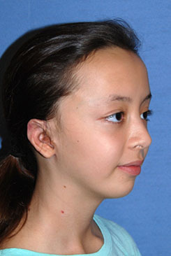 Cup Lop Constricted Ear After Otoplasty Right Oblique