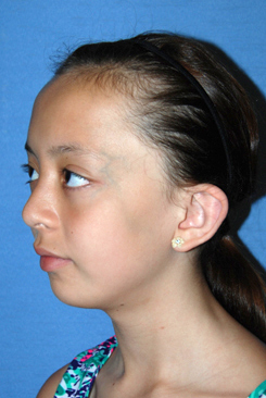 Cup Lop Constricted Ear Before Otoplasty Oblique