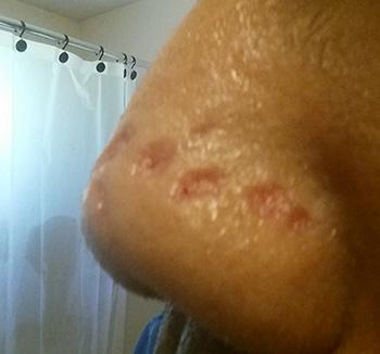 Nose Skin Scar Lesion Image Healing Diary