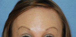 Botox® Dysport® for Forehead Wrinkles After