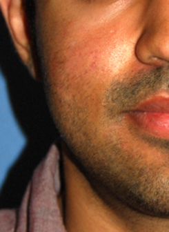 acne scar treatment after
