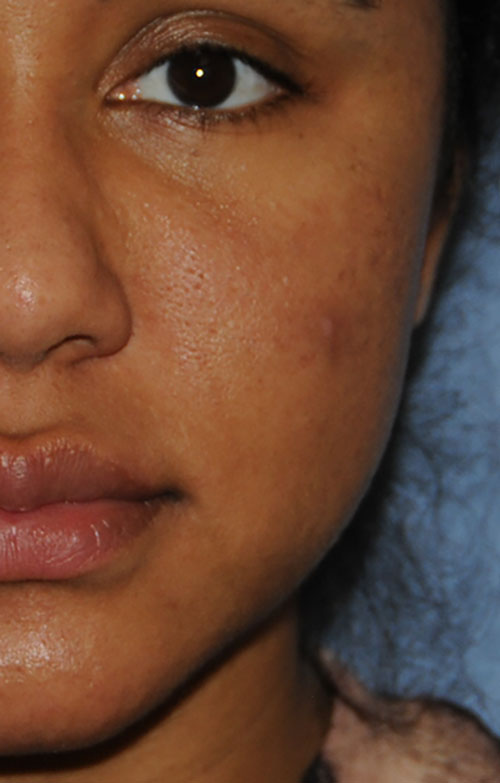 Acne Scar Vitalizer African American 6 months After Treatment Left Front Close Up