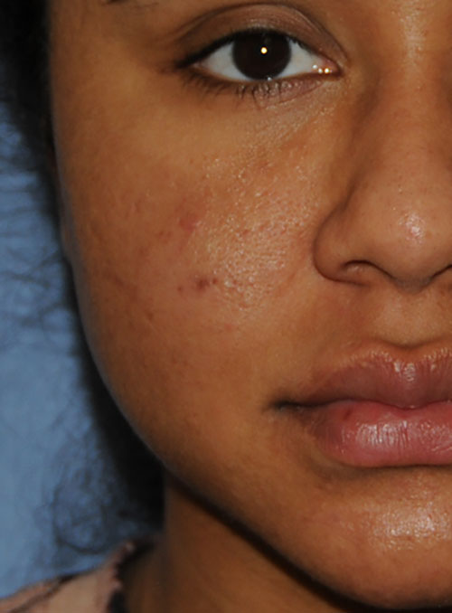 Acne Scar Vitalizer African American 6 months After Treatment Right Front Close Up