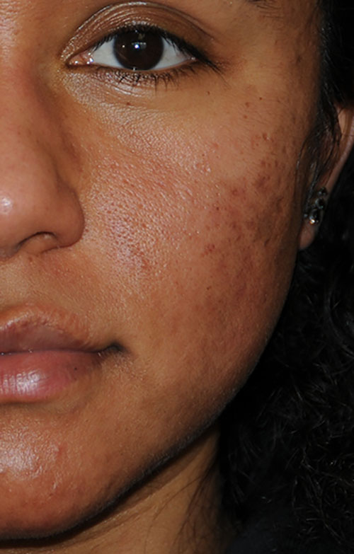 Acne Scar Vitalizer African American Before Treatment Left Front Close Up