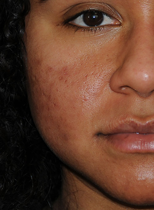 Acne Scar Vitalizer African American Before Treatment Right Front Close Up