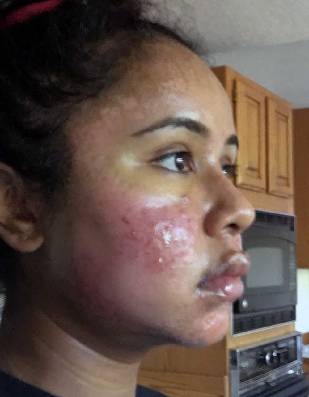 Acne Scar Vitalizer African American Treatment Healing Diary Post Procedure Day 5 Right Oblique