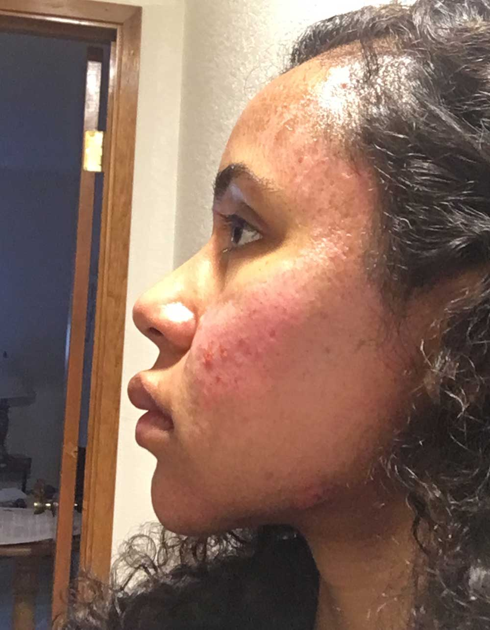 Acne Scar Vitalizer African American Treatment Healing Diary Post Procedure Day 6 Left Oblique