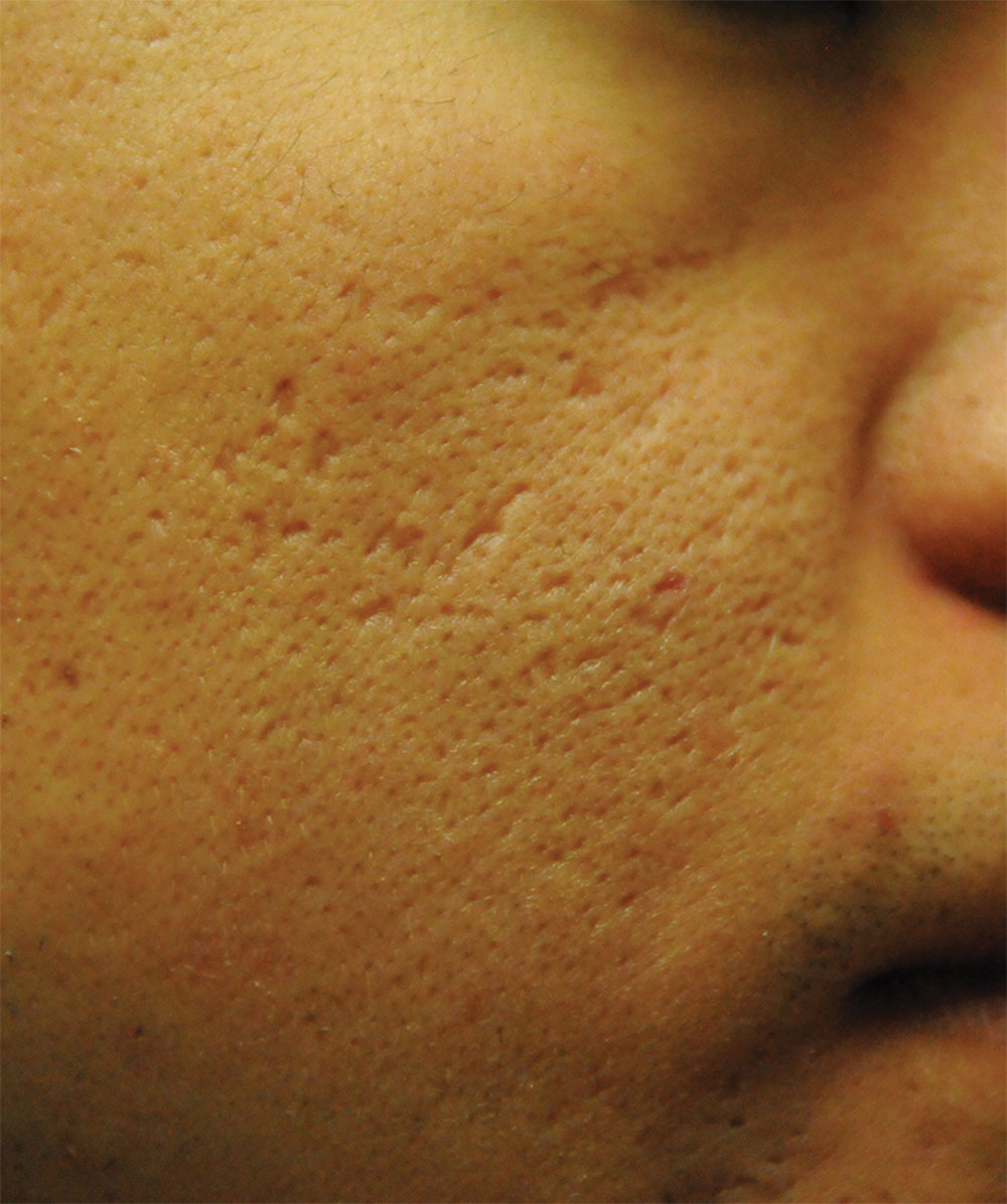 reducing acne scars on asians