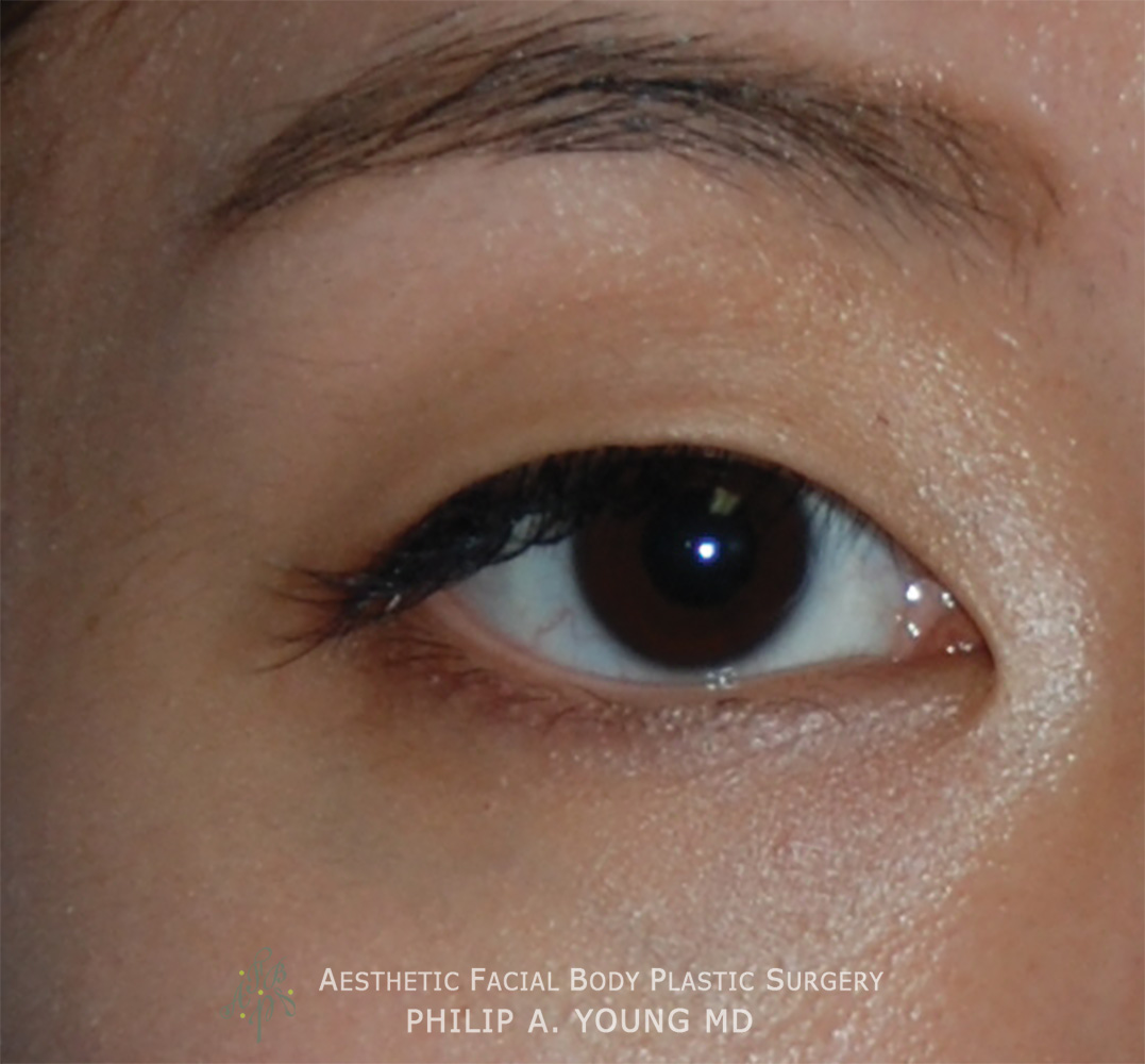 Before Double Eyelid Crease Formation