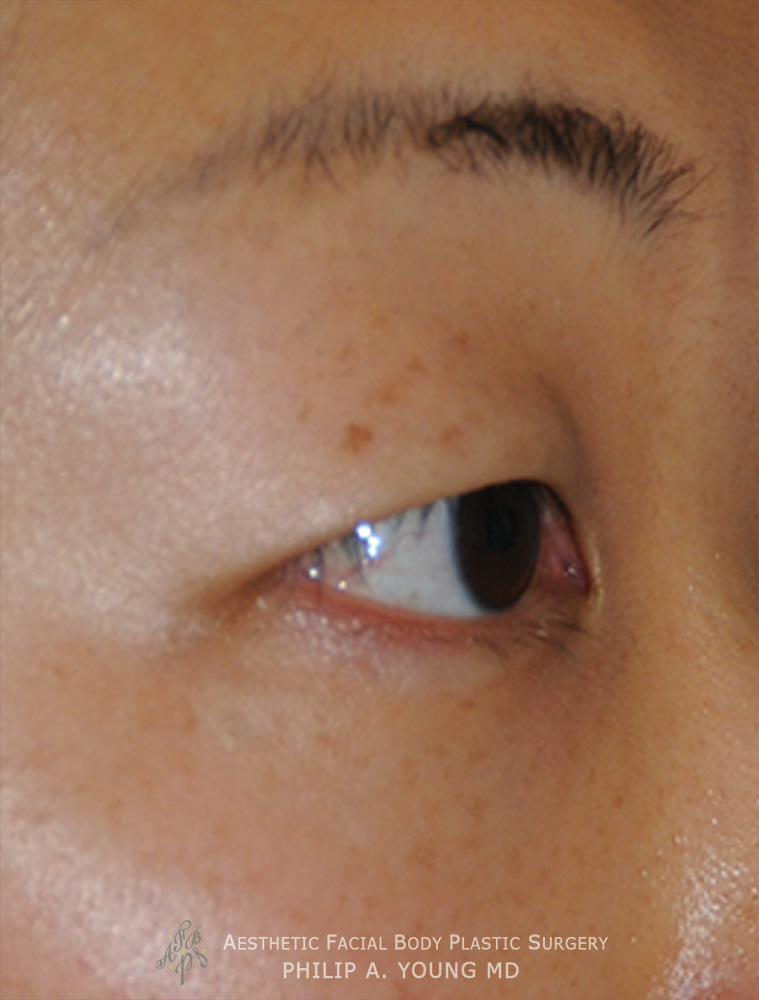 Before Asian Double Eyelid Crease Formation Surgery Right Oblique View Close Up