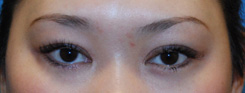 Asian Plastic Surgery Eyelid After