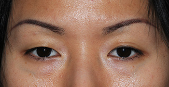 Before Asian Double Eyelid Crease Formation Eyelift Blepharoplasty for The Single Eyelid Fold using the Orbicularis Levator Fixation Technique