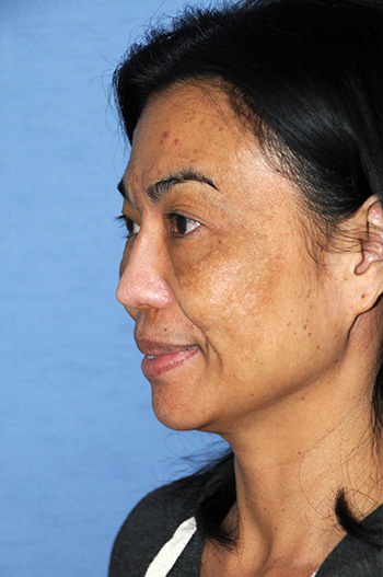 Before Asian Revision Rhinoplasty with Diced Ear Cartilage Fascia Nasal Bridge Graft