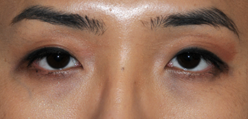 Asian Double Eyelid Crease Formation Surgery