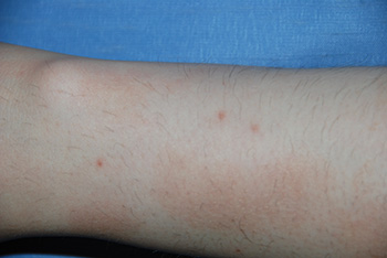 co2 Laser Removal of arm | Mole | Lesion before