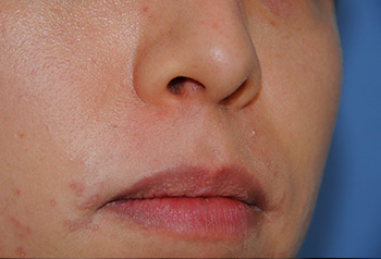 co2 Laser Removal of face | Mole | Lesion after