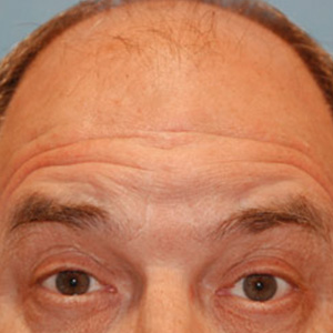 Plastic Surgery Before And After Images Of Seattle Bellevue