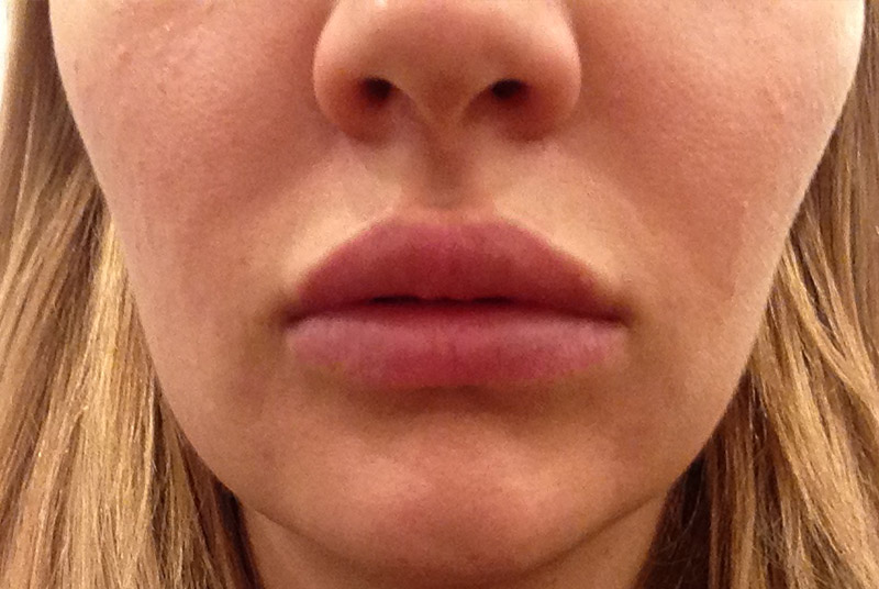 33 days After Silicone Perma Lip Augmentation