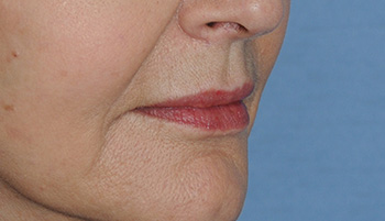 lip augmentation young vitalizer