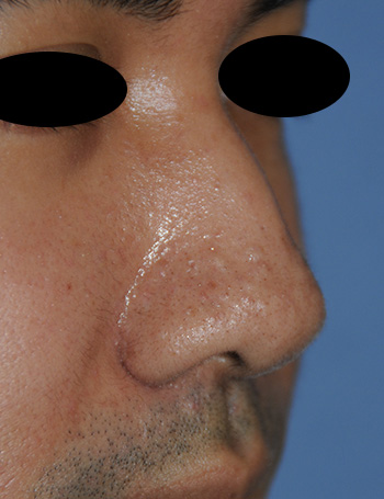 Nose Laser Resurfacing Scar Revision Front Down