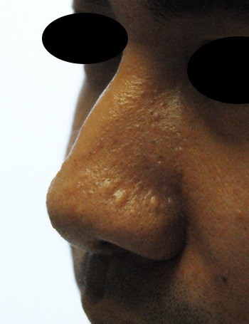Nose Laser Resurfacing Scar Revision Lateral Left View