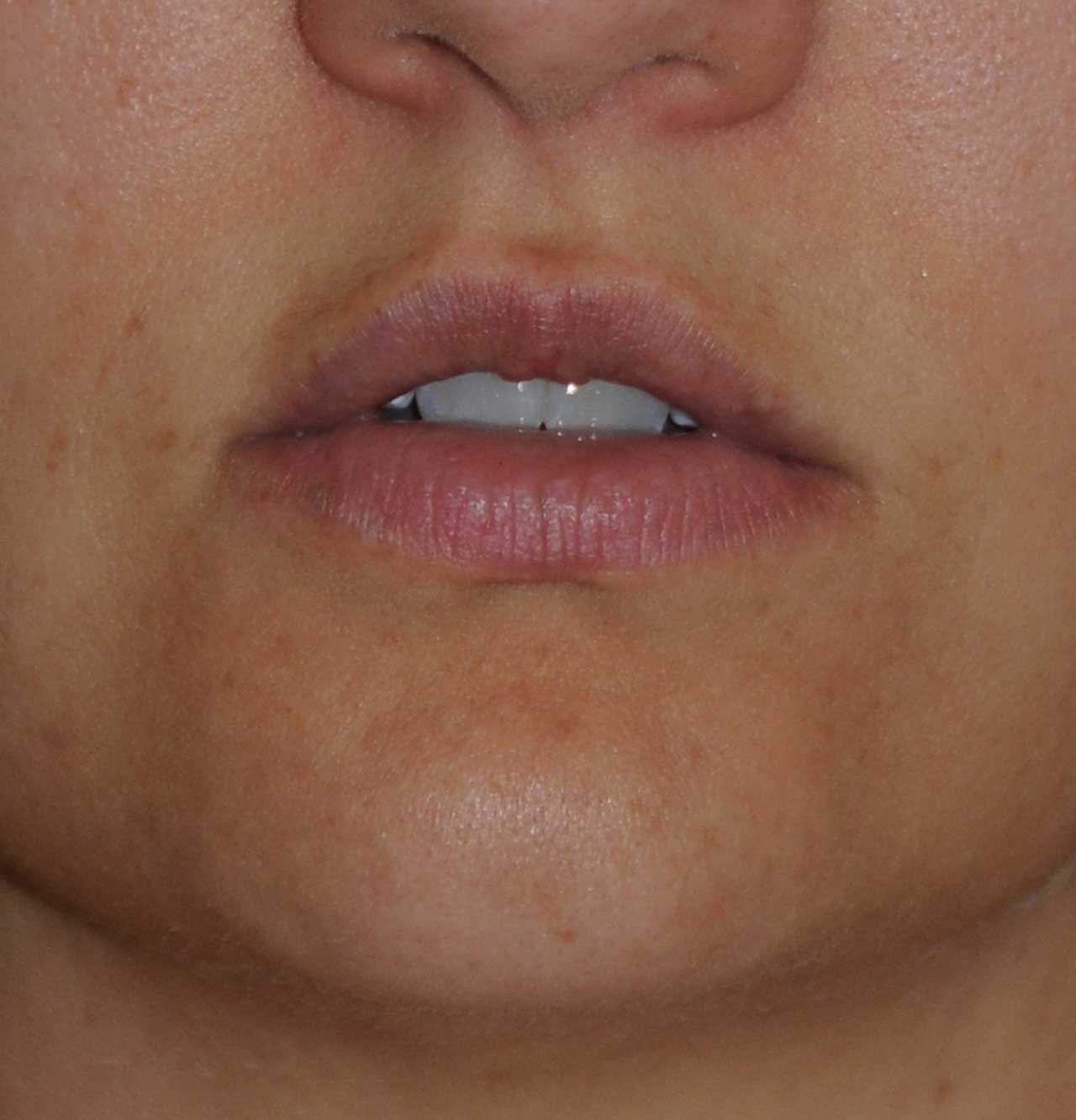 Before Silicone Permalip Implants for small, thin lips