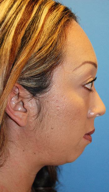 Before Chin Implant for a Retruded, Small Chin and Filler Under the Eyelid and in the Cheek Region Side View