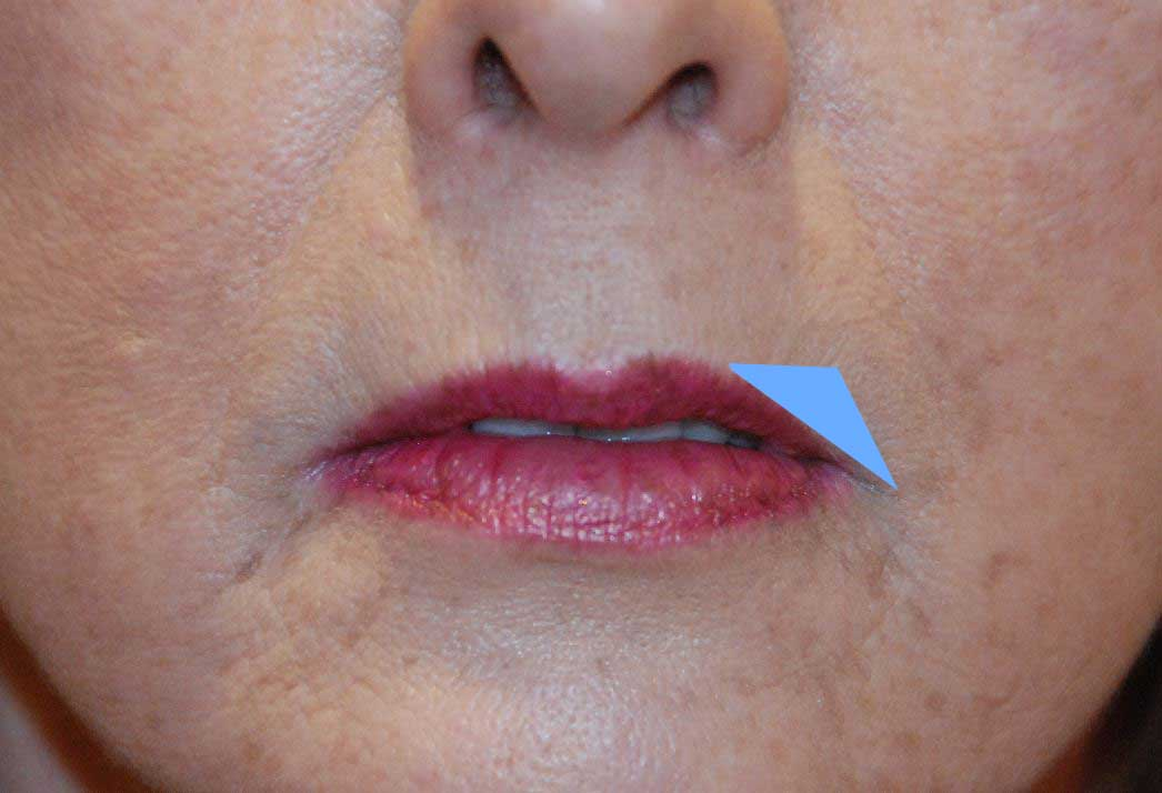 Corner Lip Lift Procedure