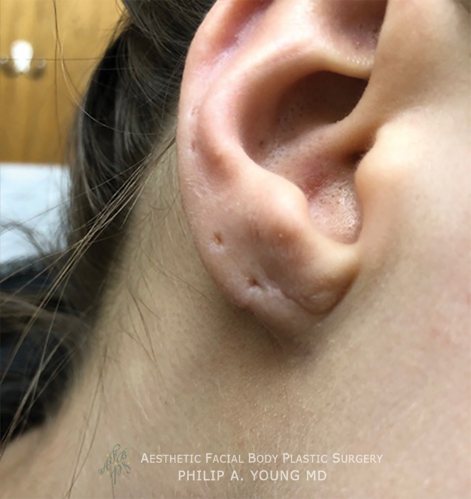 After Ear Reconstruction Repair for Gauged | Stretched | Torn Earlobes