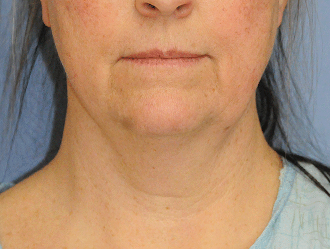 60's Caucasian Female with Double Chin Turkey Neck Sagging & Laxity, Facial Jowling & Neck Banding Before Neck Lift Front View