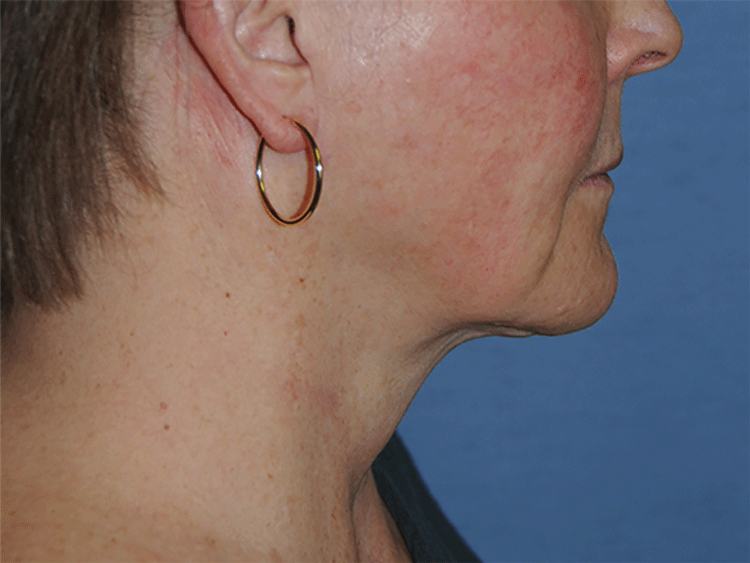 60's Caucasian Female From Greater Everett Area with Double Chin Turkey Neck Sagging & Laxity, Facial Jowling & Neck Banding After Neck Lift Front View
