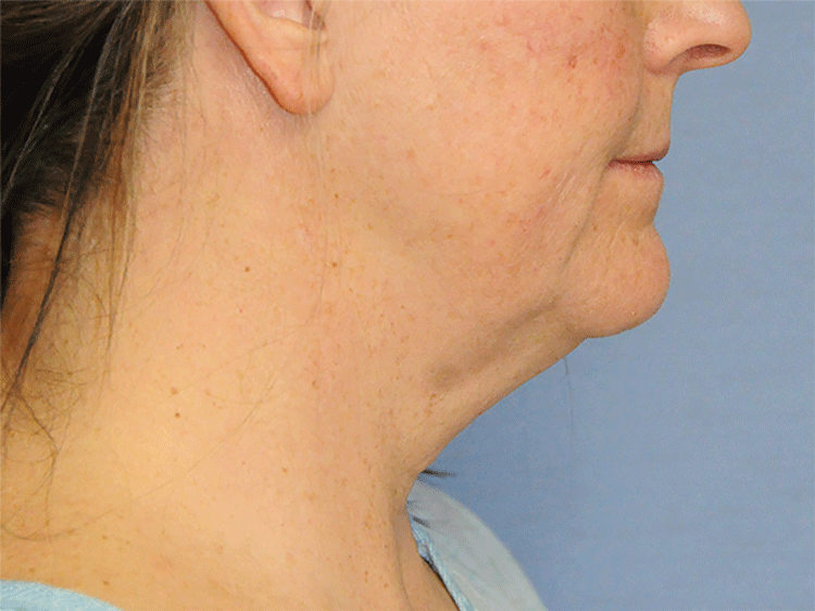 60's Caucasian Female From Greater Everett Area with Double Chin Turkey Neck Sagging & Laxity, Facial Jowling & Neck Banding Before Neck Lift Side View