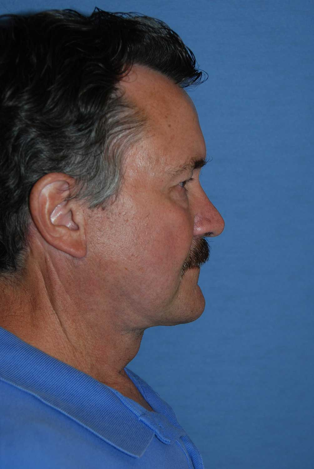 60's Caucasian Male with Severe Neck Sagging & Laxity, Facial Jowling & Platysmal Muscle Banding After Face Lift NeckLift Lateral View