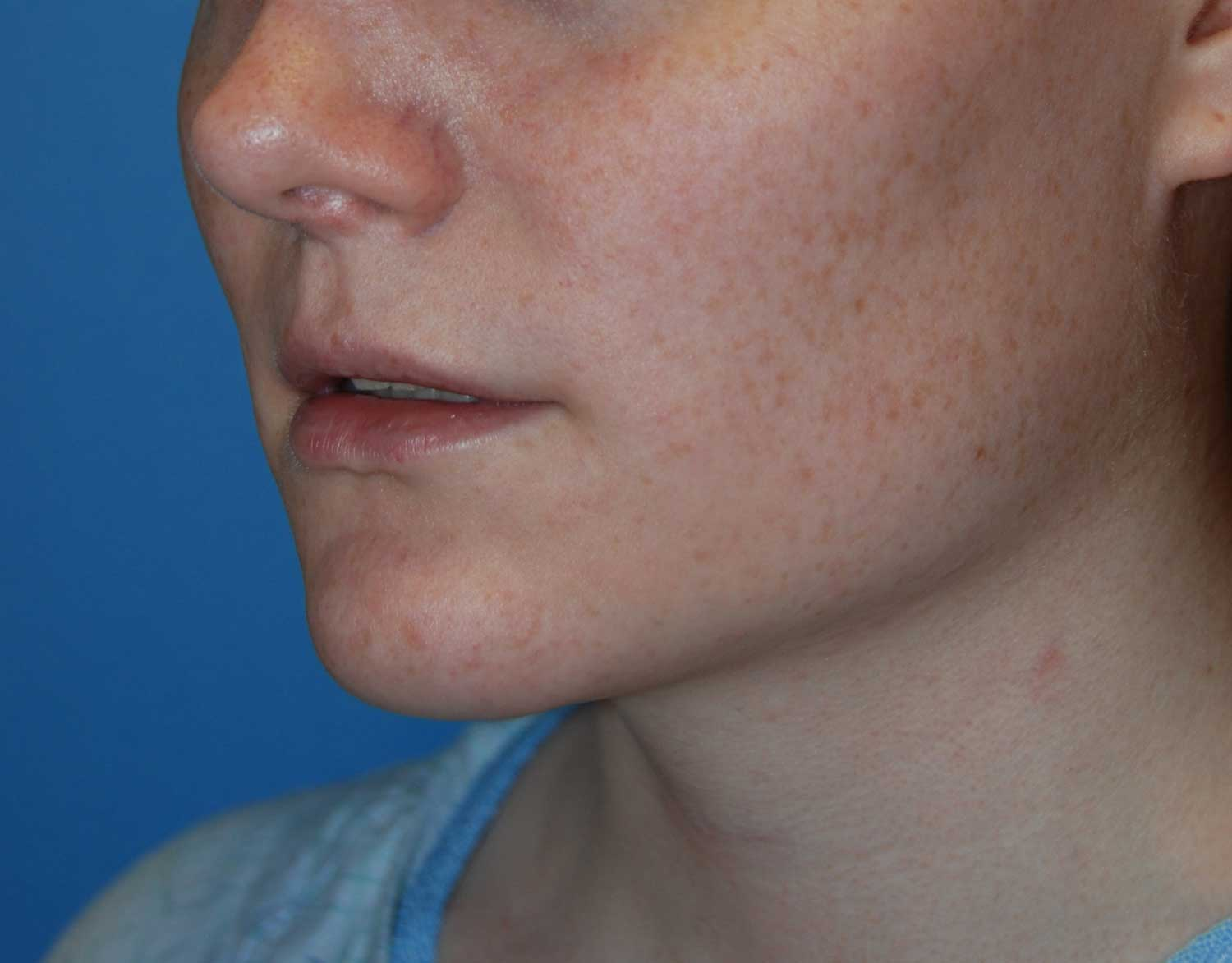 Oblique View Before Chin Reduction / Re-shaping and Lip Enhancement with a V-Y Advancement Flaps