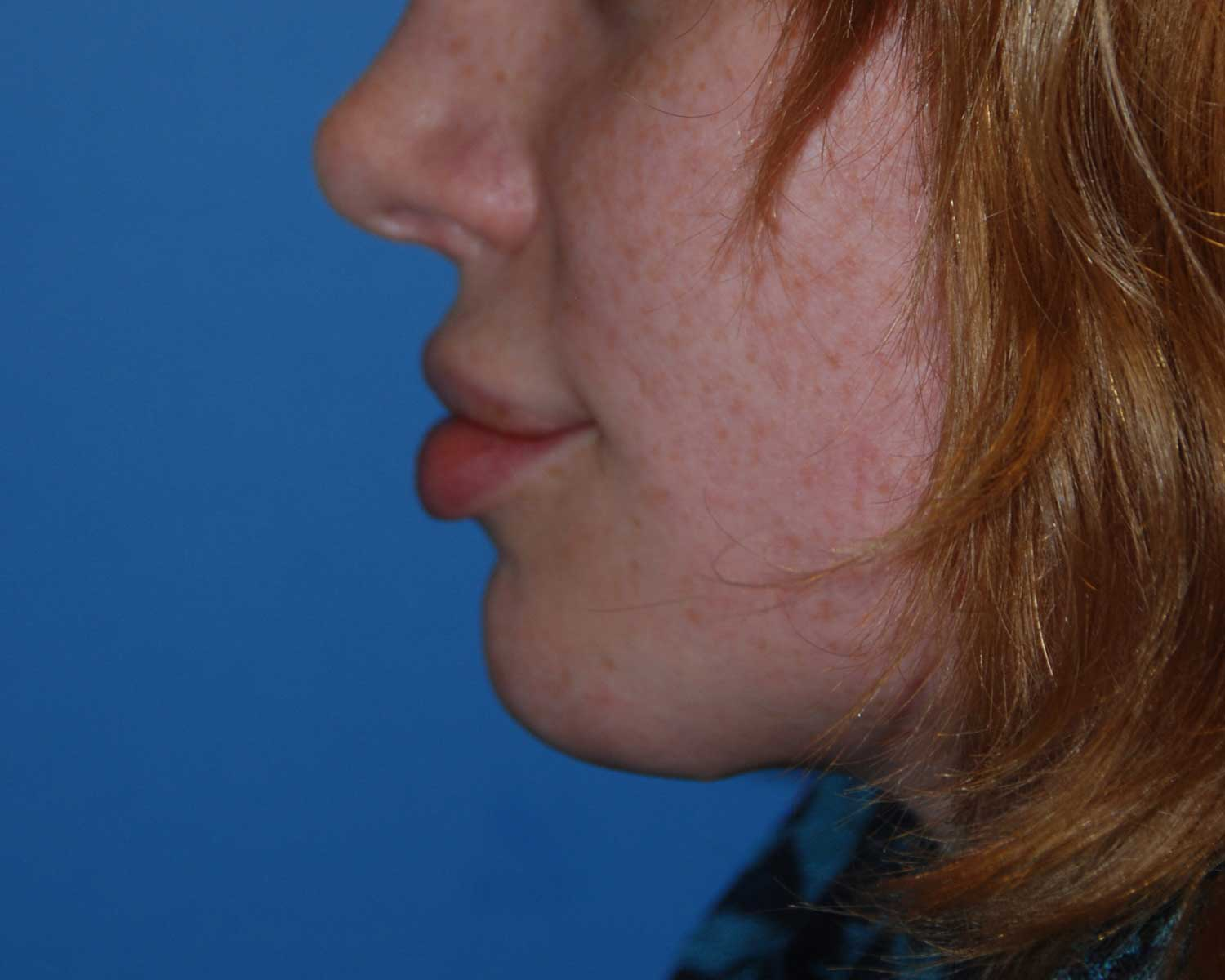 After Chin Reduction / Re-shaping and Lip Enhancement with a V-Y Advancement Flaps