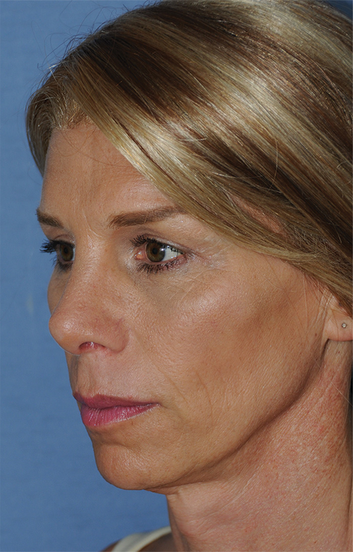 After Transgender Feminization Rhinoplasty Procedure  Oblique View